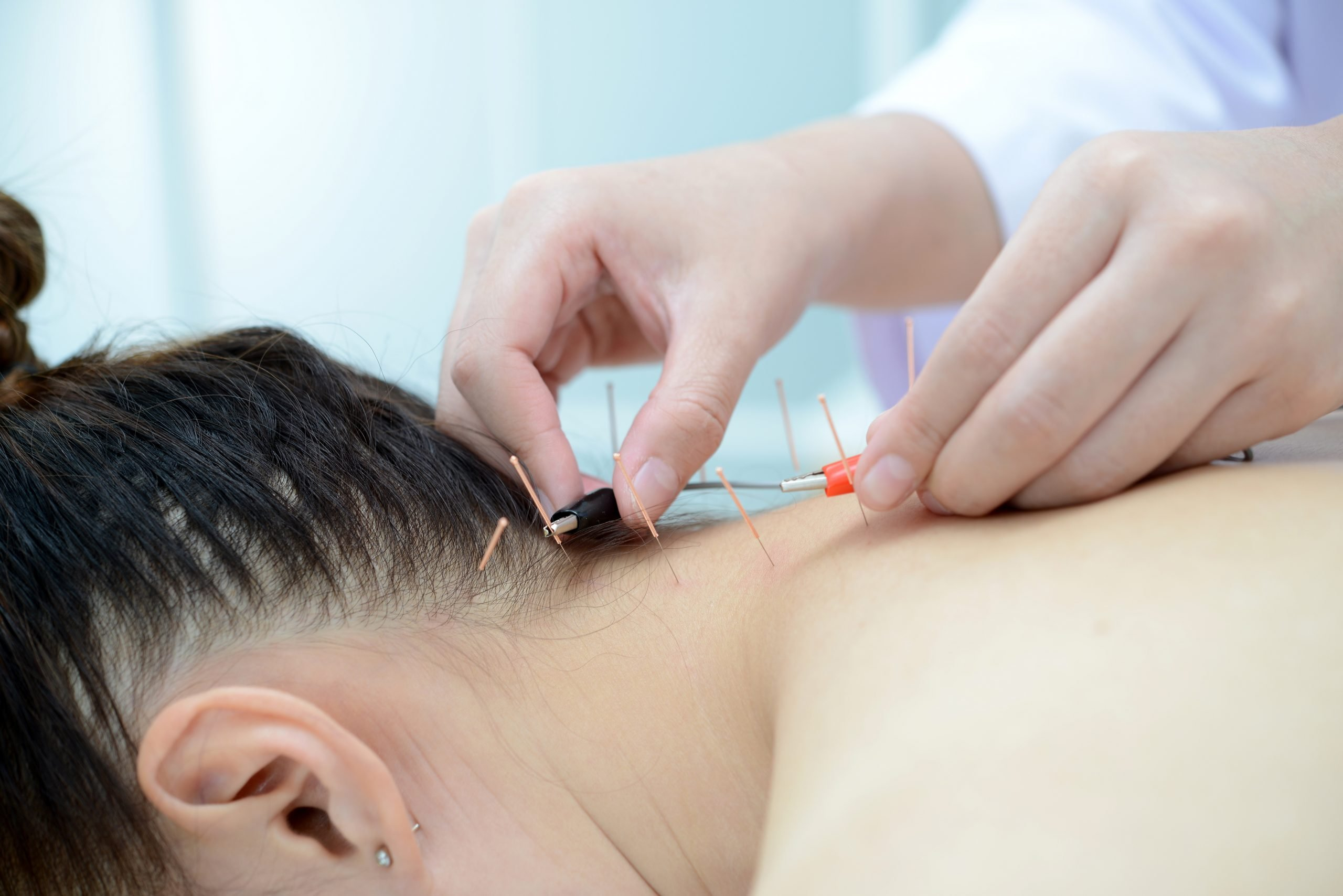 Electro Acupuncture.Traditional Chinese acupuncture and Electroa